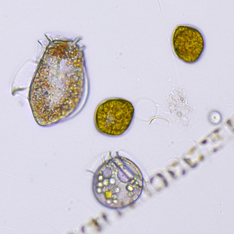 Phytoplankton from the study near a mussel farm on the Swedish Skagerrak coast in autumn 2016. The organism at the top left is Dinophysis acuta, a producer of Diarrhetic Shellfish Toxins. Photo: Bengt Karlson